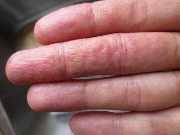Возможно появление аллергической реакции на БФ-6